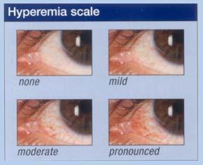 Hyperemia Scale